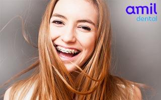 amil-dental-e45-orto-pme